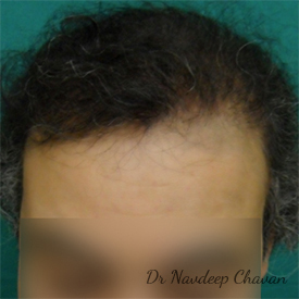 post op hair transplant