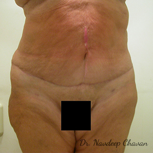 post-op-abdominoplasty