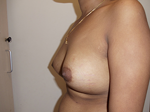 post-op-breast-augmentation