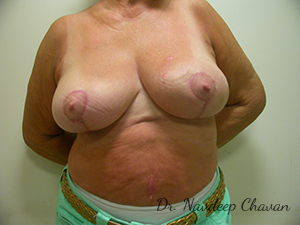post-op-breast-reduction