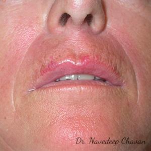 post-op-lip-augmentation