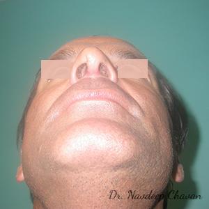 post-op-rhinoplasty