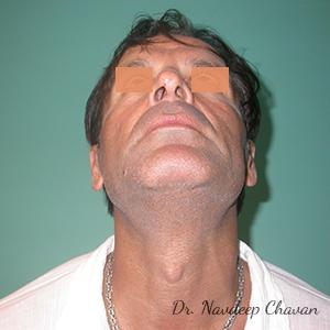 pre-op-rhinoplasty