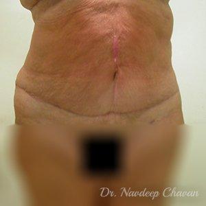 post-op-abdominoplasty