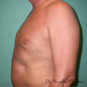 post-op-gynecomastia