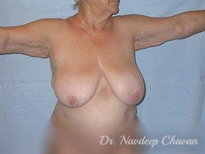 pre-op-breast-reduction
