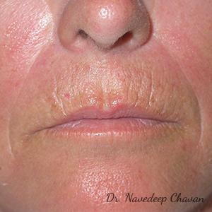 pre-op-lip-augmentation