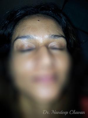 post op botox