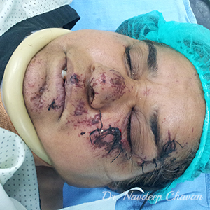 pre-face-laceration