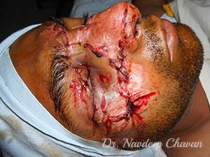 pre-op-facial-injury