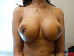 post-op-breast-lift
