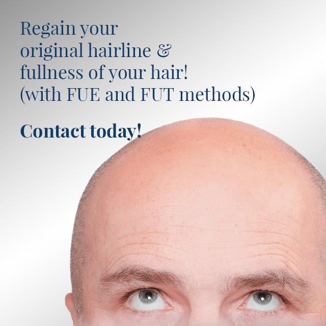 sb-slide-hair-transplant