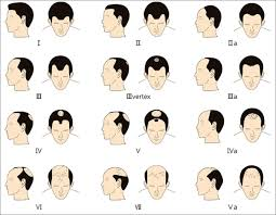 baldness classification in male (mpb)