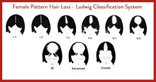 female baldness classification